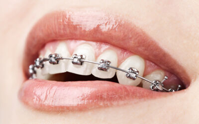 A Helpful Site on Orthodontics