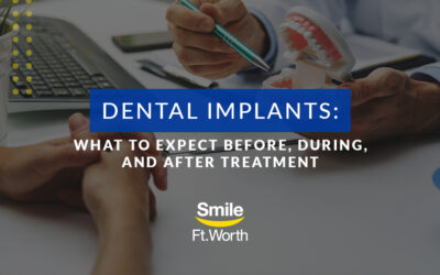Dental Implants: What to Expect Before, During, and After Treatment